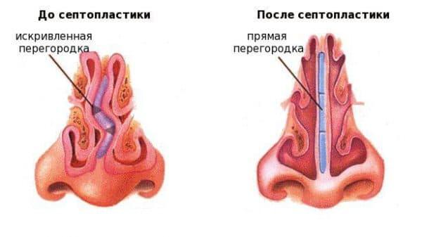 Сенопластика - лазерная коррекция носовой перегородки