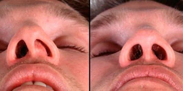 Сильное искривление носовой перегородки у пациента. Требует хирургического вмешательства