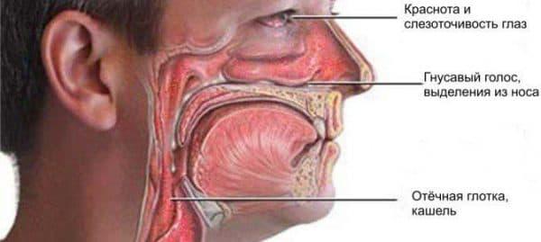 Симптомы назофарингита
