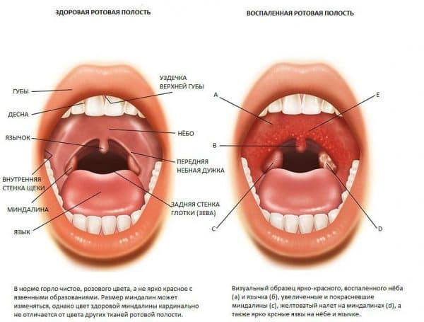 Симптомы хронического тонзиллита у взрослых