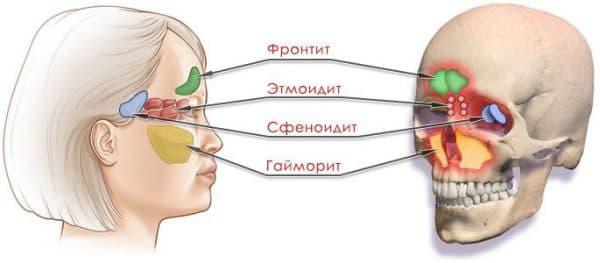 sfenoidit