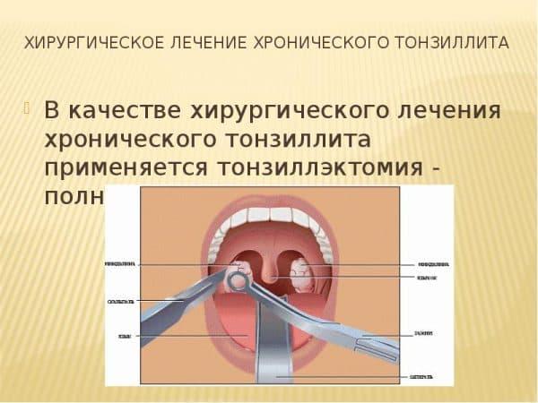 Хирургическое лечение хронического тонзиллита