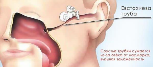 Чем обоснована заложенность уха