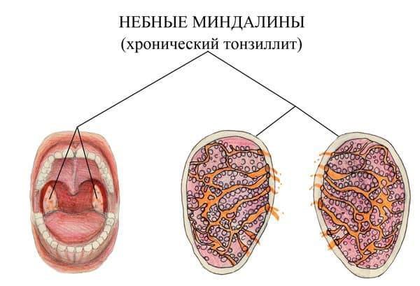 Что происходит с миндалинами при их хроническом воспалении
