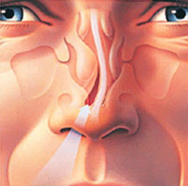 Явные признаки искривленной носовой перегородки