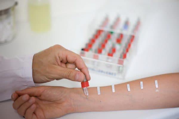 Проведение анализа на возможные аллергены