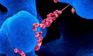 bakterii-tonzillita