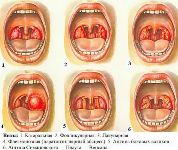 vidy-anginy