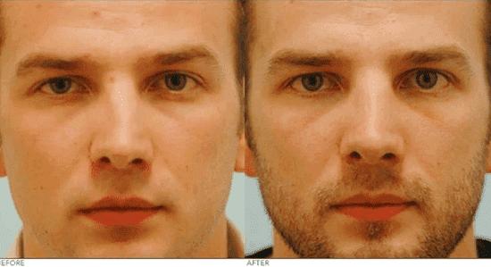 Деформация наружного носа мкб 10