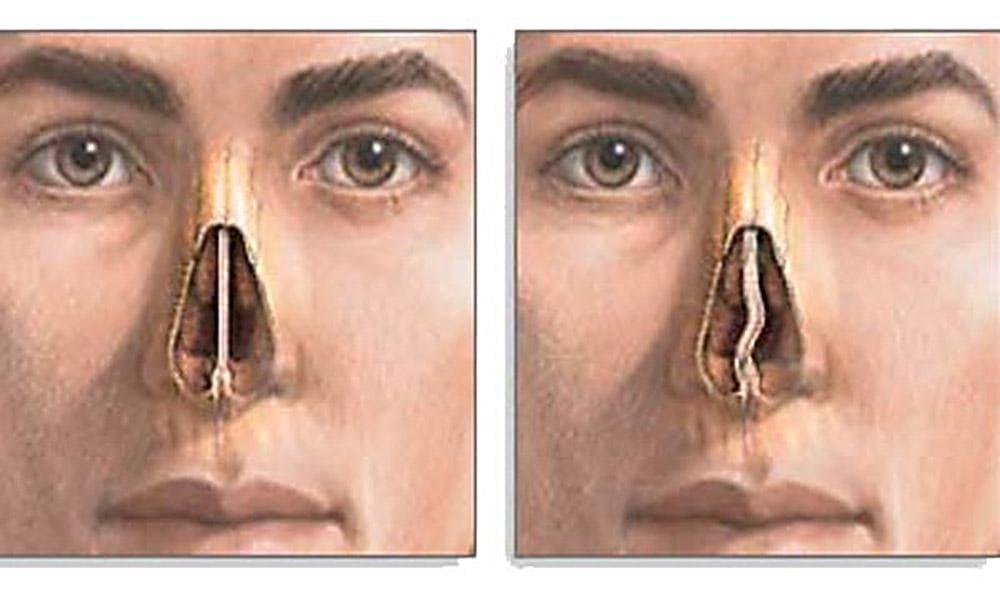 Как исправить носовую перегородку без операции