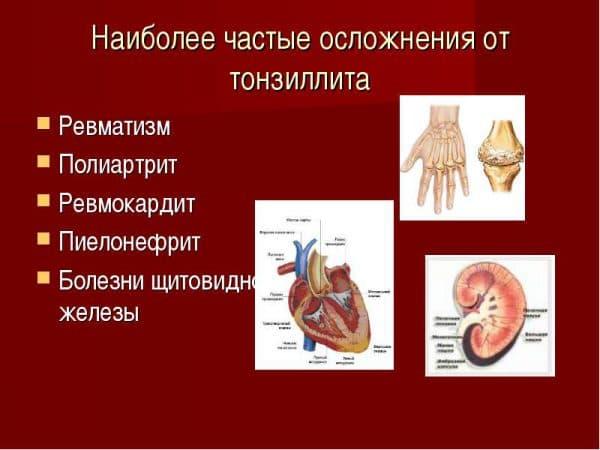 наиболее частые осложнения тонзиллита