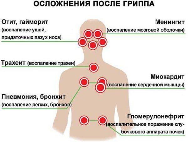 Осложнения после вакцинации