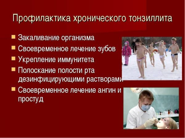 профилактика хронического тонзиллита