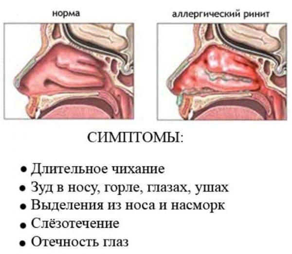 simptomy-allergicheskogo-rinita