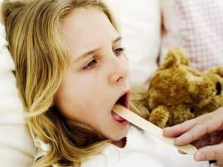 тонзиллит лечение в домашних условиях быстро