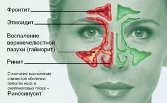фронтит симптомы и лечение в домашних условиях