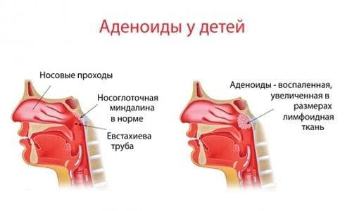 adenoidit-u-detej