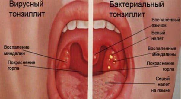 Вирусный и бактериальный тонзиллит