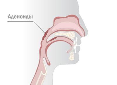 vot-gde-naxodyatsya-adenoidy