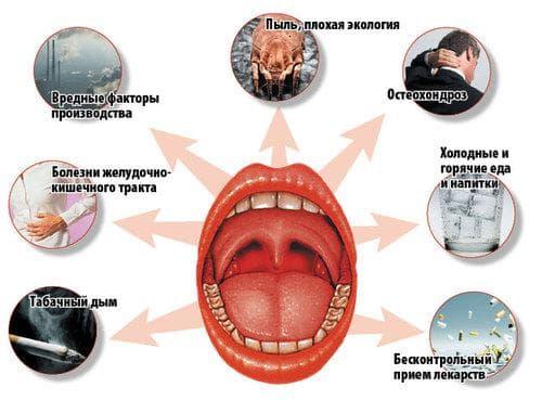 Причины возникновения ангины или тонзиллита