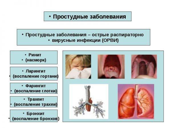 prostudnye-zabolevaniya-provociruyut-razvitie-traxeita