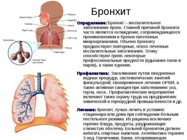simptomy-i-priznaki-bronxita