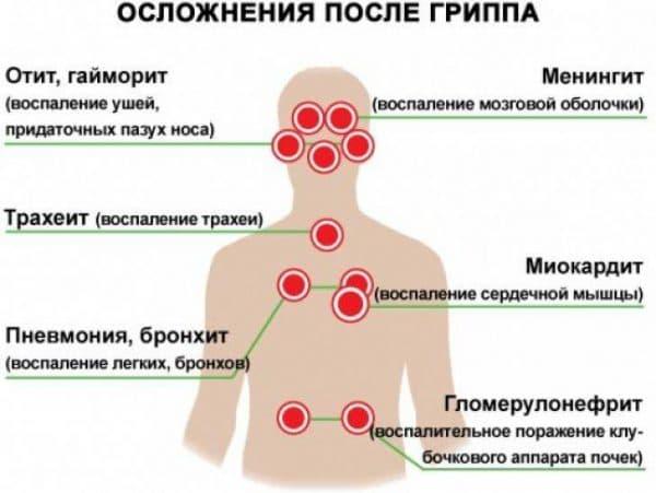 Трахеит может быть осложнением гриппа