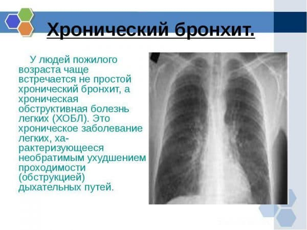 xronicheskij-bronxit-ili-xobl