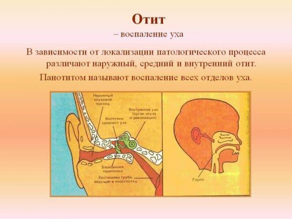 otit-opredelenie-zabolevaniya