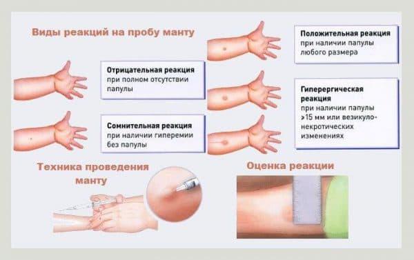 reakciya-na-privivku-ot-grippa