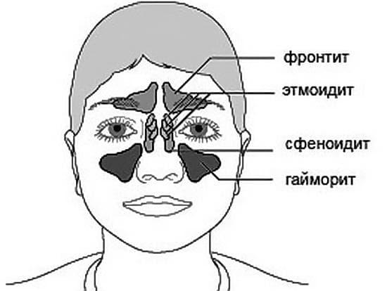 Воспалены пазухи носа как лечить