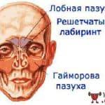 фронтит симптомы и лечение у взрослых