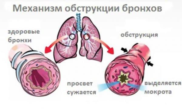 Бронхо-обструктивный синдром
