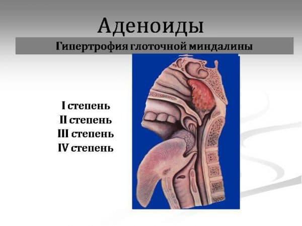 gipertrofiya-mindaliny