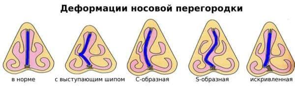 Деформации носовой перегородки