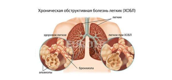 zabolevaniya-bronxov-i-legkix