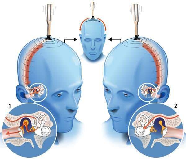 Тест на проверку слуха по Веберу проводится с помощью камертона. Камертон активируется, и приставляется к различным частям головы и лба. Пациента просят прислушаться, и сказать, какое ухо в каком случае слышит лучше. Результаты этого теста полностью зависят от адекватности пациента, его внимания и желания сотрудничать.