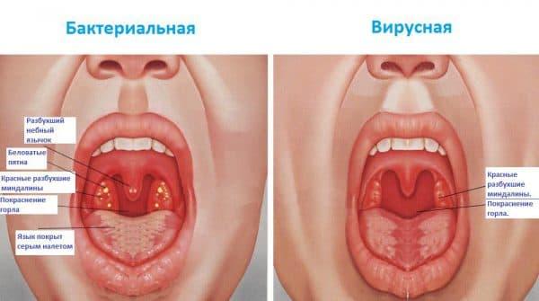 anginy