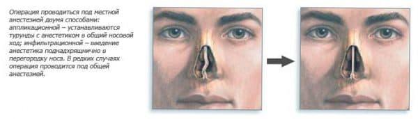анестезия во время операции по восстановлению носовой перегородки