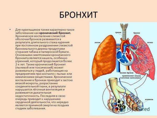 bronxit-kurilshhika
