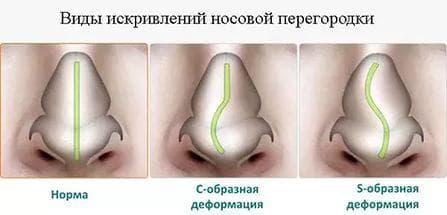 vidy-iskrivlenij-peregorodki