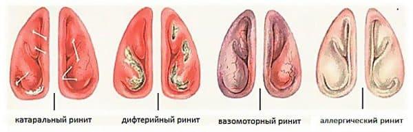 vidy-rinitov
