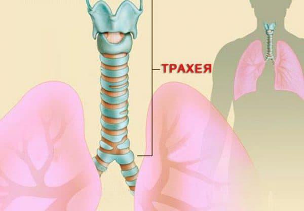Воспаление трахеи именуется трахеитом