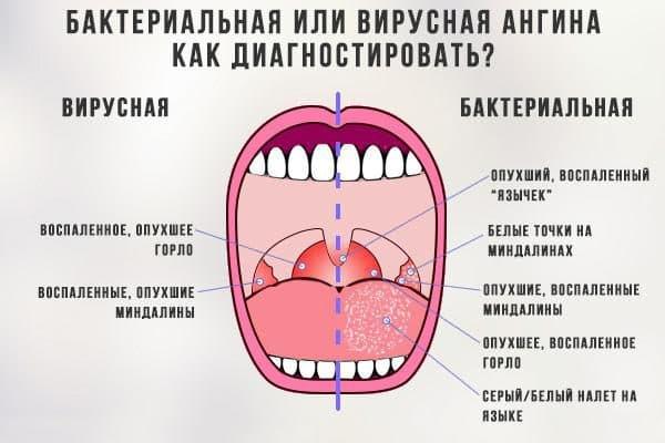 kak-diagnostirovat-virusnuyu-i-bakterialnuyu-anginu