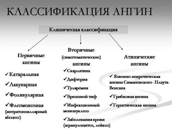 klassifikaciya-angin-i-tonzillitov