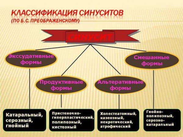 klassifikaciya-sinusitov
