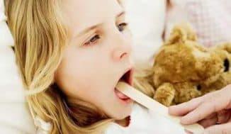 лечение ангины у детей в домашних условиях