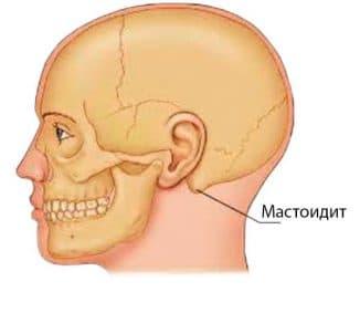 мастоидит симптомы