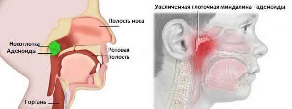 priznaki-adenoidita-u-detej