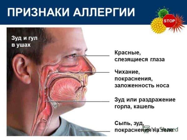 priznaki-allergii